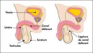 vasectomie