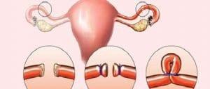ligature trompe faloppe