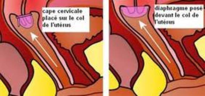 diaphragme cape cervicale