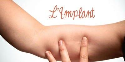 implant contraceptif