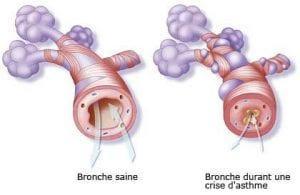 illustration crise d'asthme