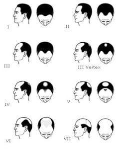 classification alopecie