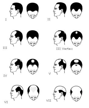 classification alopecie