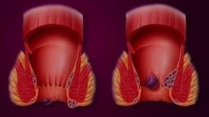 hemorroides internes et externes