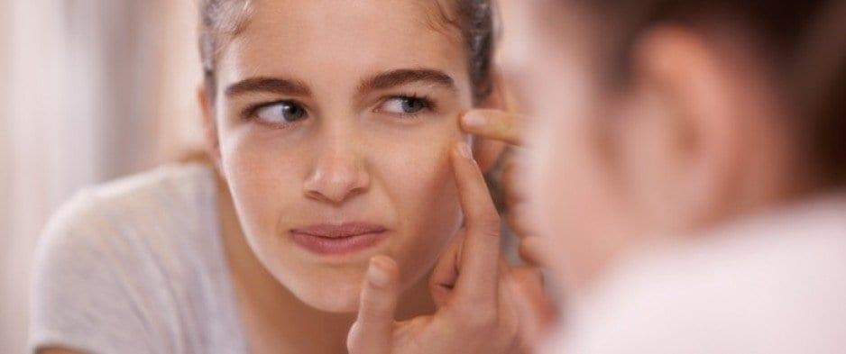 acne adolescence