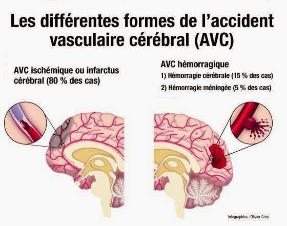 differentes formes AVC