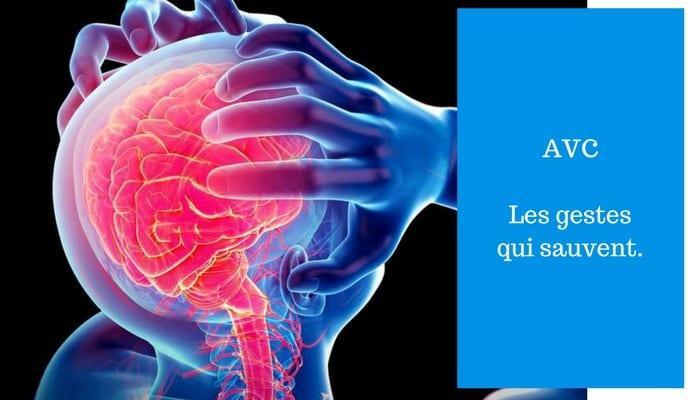Accident ischémique transitoire : Causes, symptômes, conséquences
