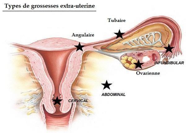 types grossesse extra uterine