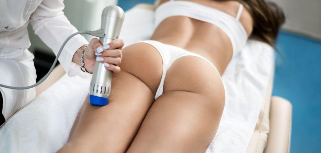 laser vergetures