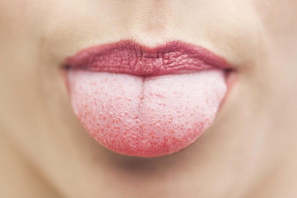 cause et traitement langue blanche