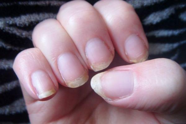 ongles qui se dedoublent