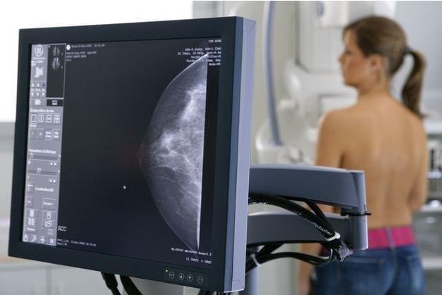 depistage cancer du sein mammographie