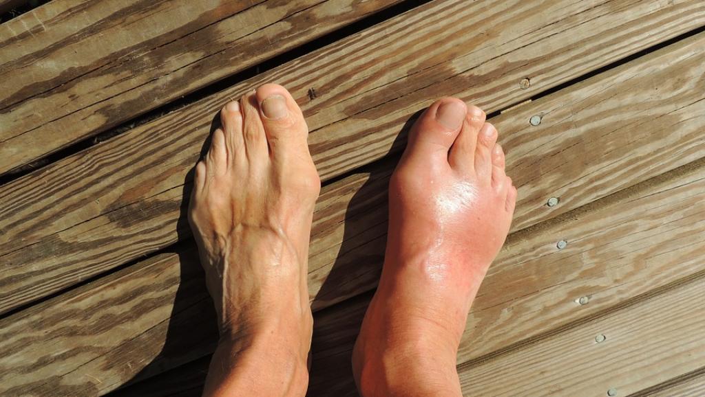 goutte pied