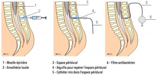 Schéma-Péridurale