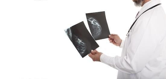 mammographie cancer du sein