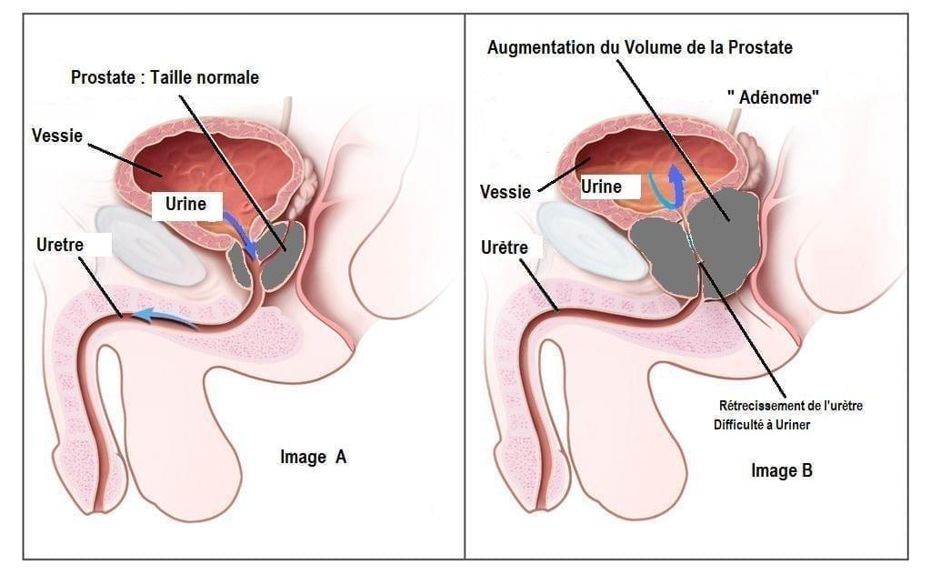 Adenome-de-la-prostate