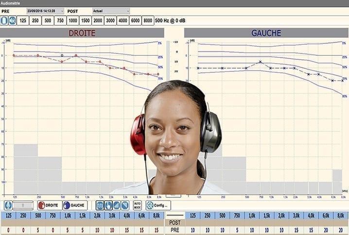 audiometrie resultat