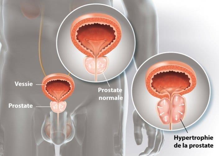 URO-adenome-prostate