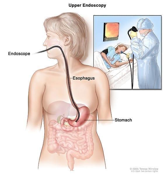 biopsie endoscopique