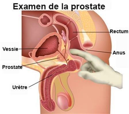 examen de la prostate