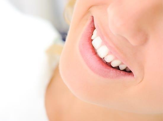 femme au sourire éclatant