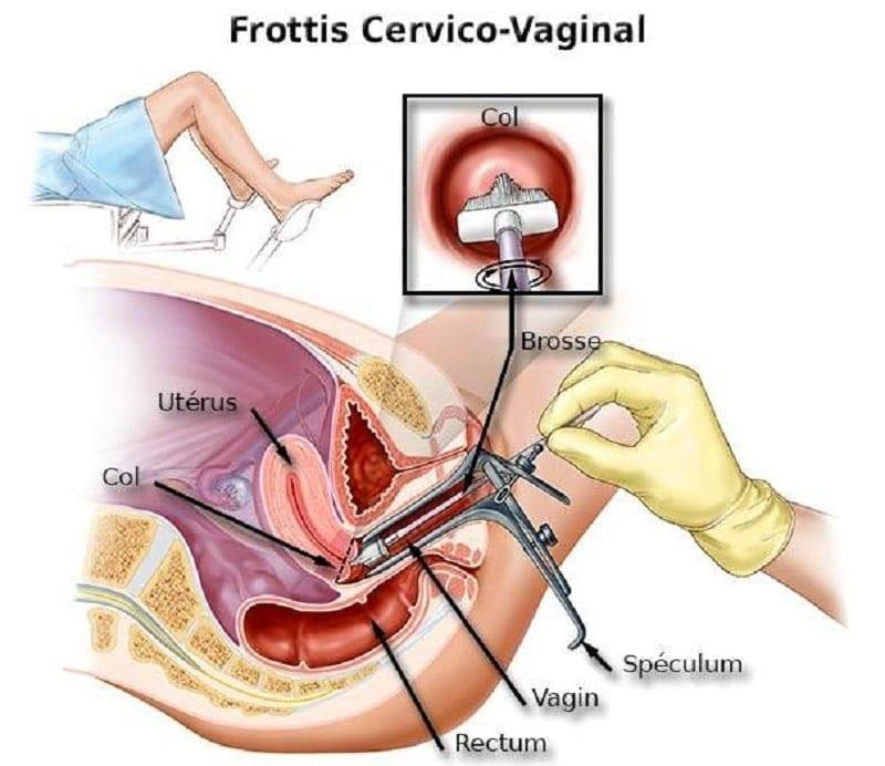 frottis cervico vaginal