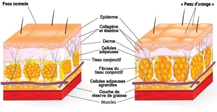 peau-avec-cellulite