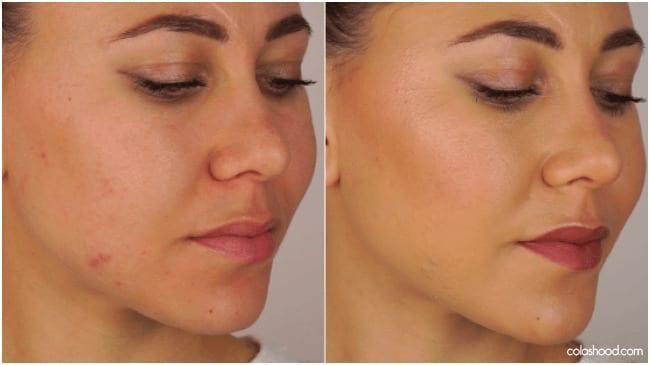 comment-faire-disparaitre-un-bouton-maquillage
