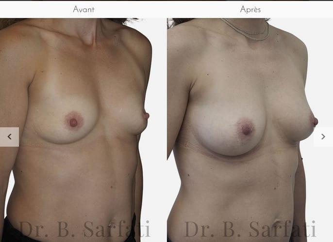 prothèse mammaire dr sarfati