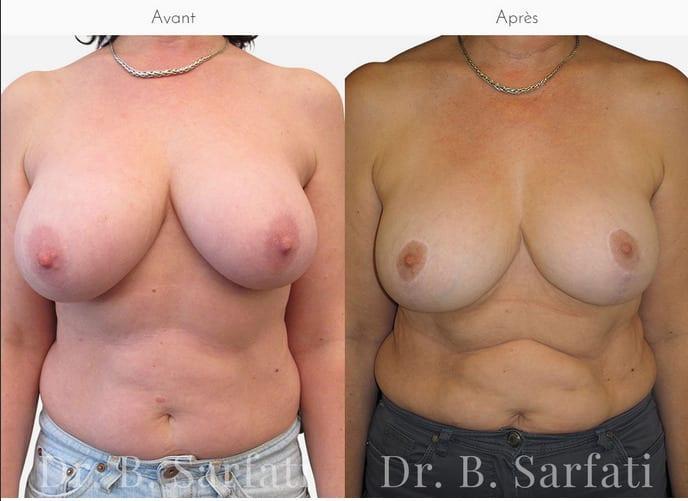 réduction mammaire dr sarfati